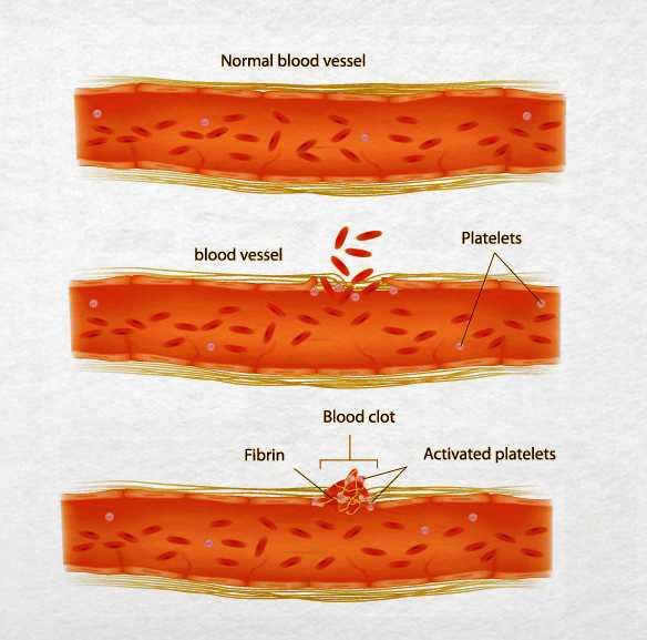 Yếu tố ảnh hưởng tới kết quả xét nghiệm TT là sử dụng các loại thuốc chống đông