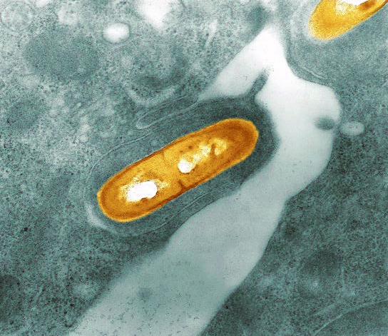 Listeria là gì